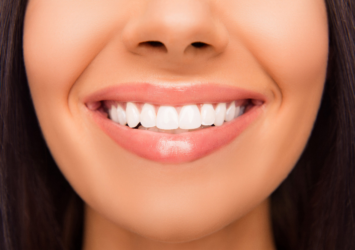 Orthodontist with six month smiles in, Asheville