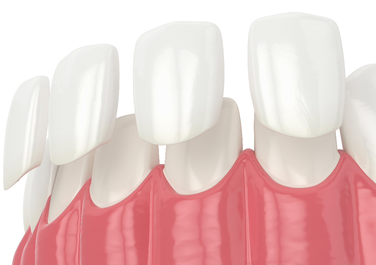 Damaged and broken teeth may be fixed with porcelain veneers,Asheville, NC