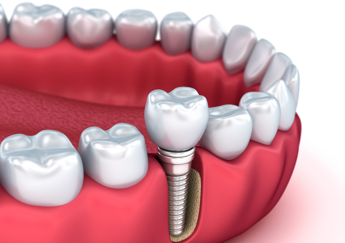Cost of Dental Implants in, Hendersonville NC