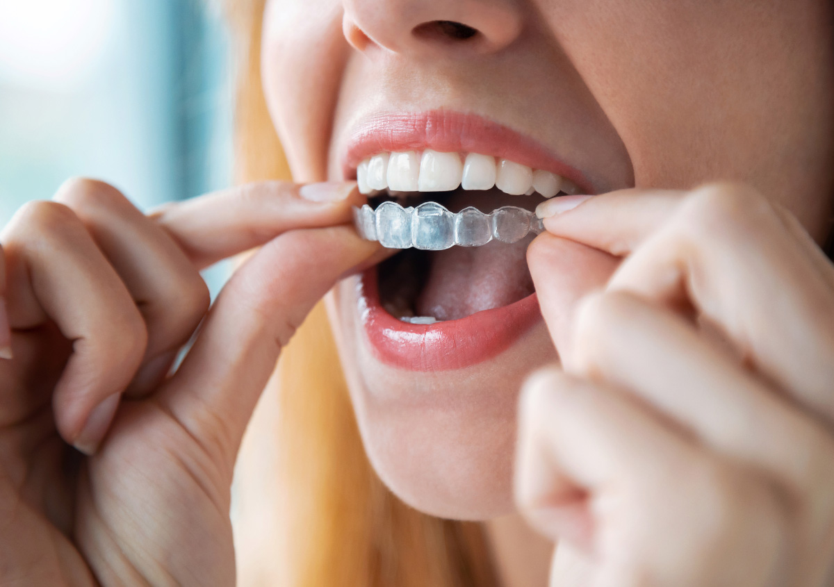 How to use Invisalign to improve my smile, Asheville, NC