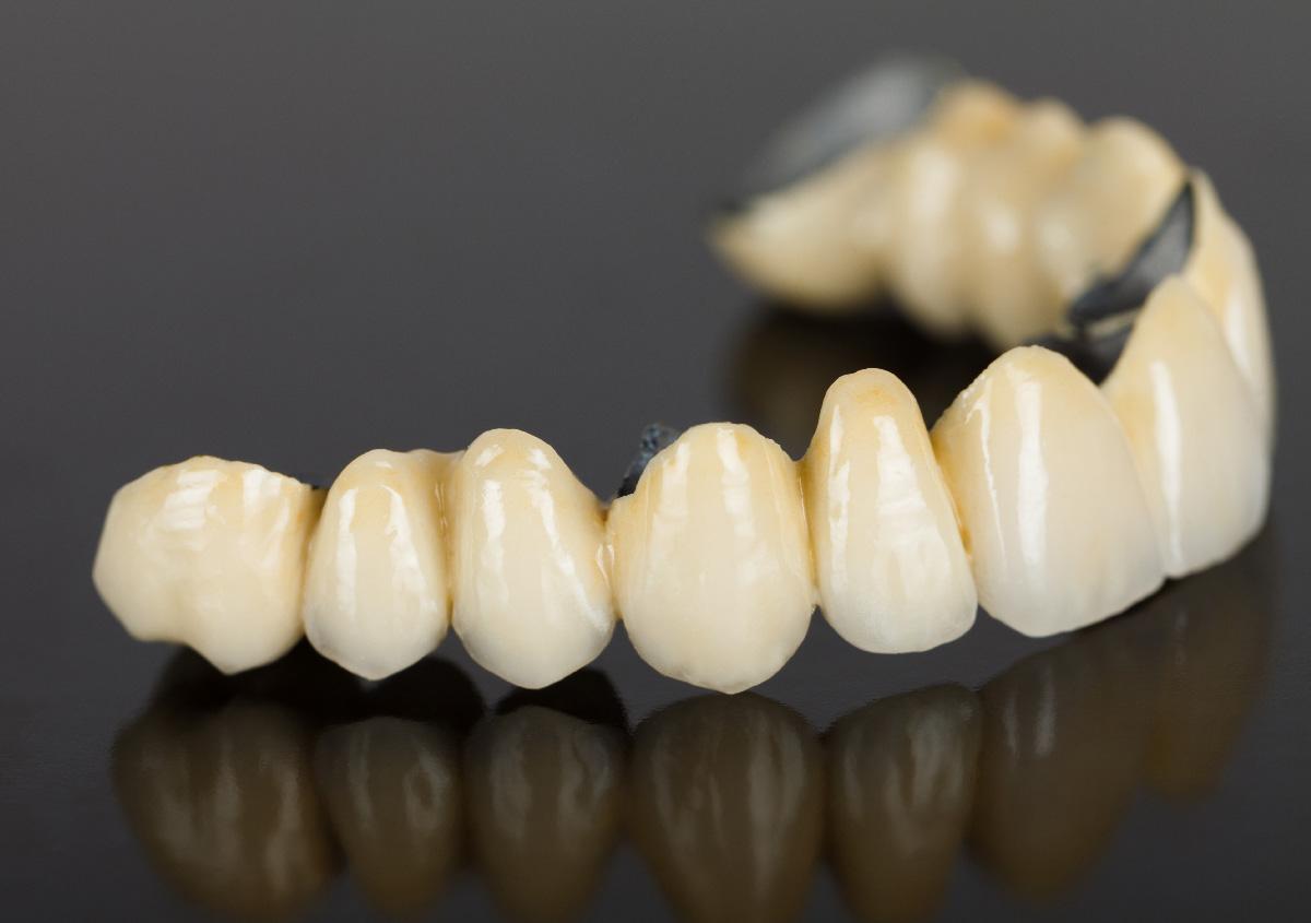 Purpose of porcelain dental bridges, Arden, NC
