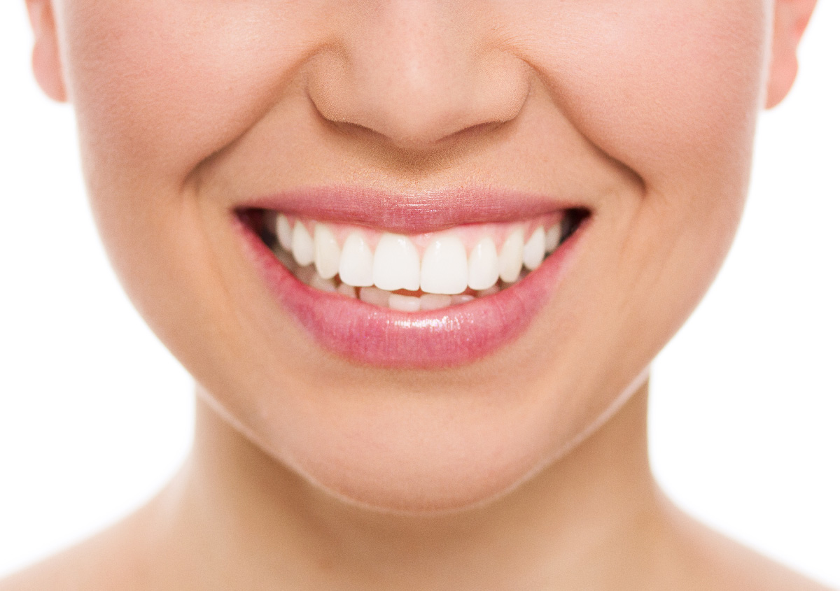 Professional Teeth Whitening in, Asheville, NC