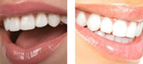 Dentist Asheville  - Before and After 1