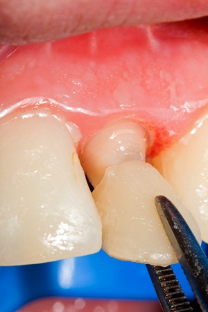 Dental crown repair from Hendersonville dentist