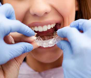 Dr. Christopher Port at Asheville dental practice offers Invisalign treatment to straighten teeth