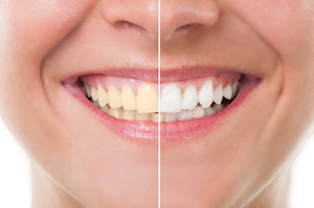 Teeth whitening before and after image
