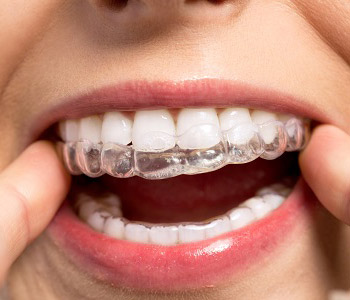 Life with your Invisalign trays, explained by Dr. Christopher Port