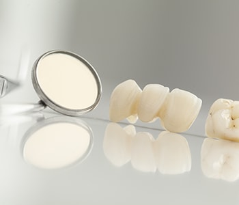 porcelain dental bridges for patients in Arden